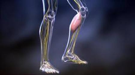 أسباب الساق والشد العضلي؟ 512018-2.JPG