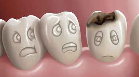 طرق الوقاية من تسوس الاسنان 5516.jpg