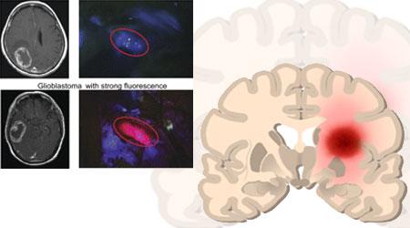 علاج جديد لأورام الدماغ يجعلها مشعّة ويسهل إزالتها