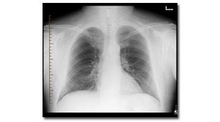 أشعة تزيد مخاطر الإصابة بسرطان الأطفال